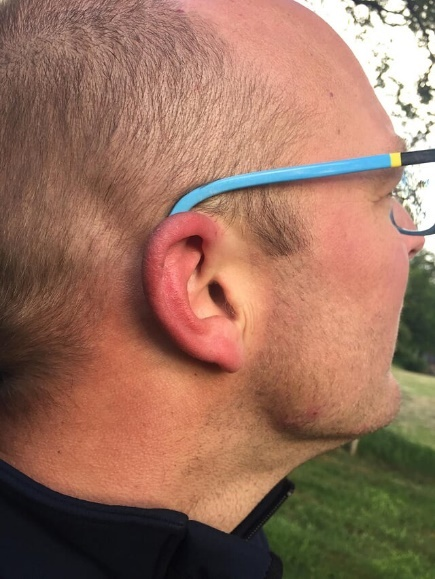 Geprikt in het oor (rood oortje)